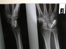 lunotr. artrodeza