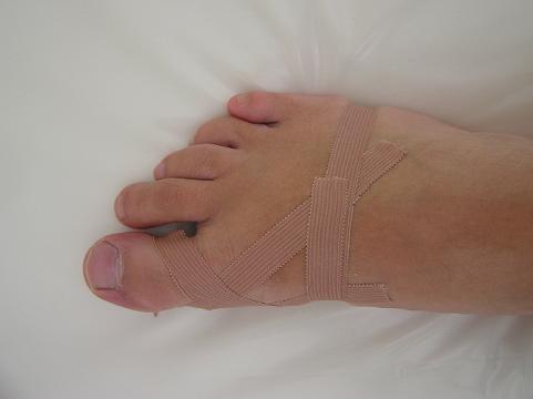 taping deformity palce