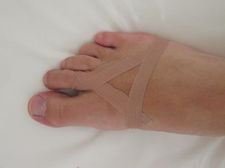 taping prstu nohy