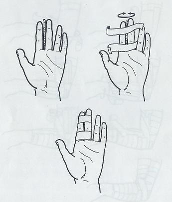 taping prstu