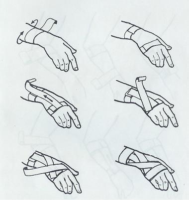 taping zapesti