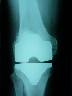 koleno 3