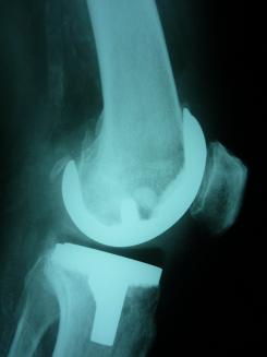 koleno 1